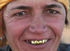For Being Very Rich, People Keep Their Gold On Their Teeth. The Most Expensive Denture Costs $140,000